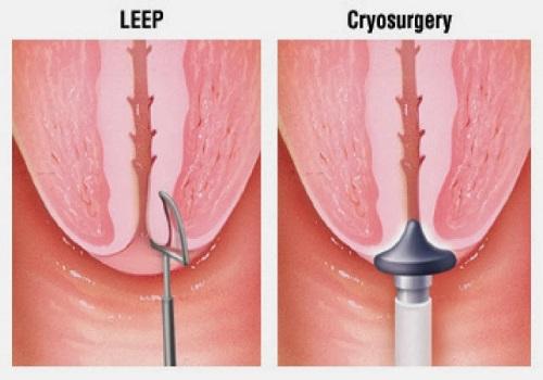 Cắt Leep cổ tử cung là gì? Có đau không