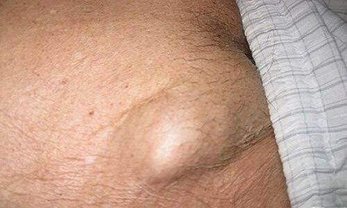 Nổi hạch vùng kín là bệnh gì ? nguyên nhân và cách điều trị