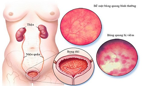 Cách điều trị viêm bàng quang